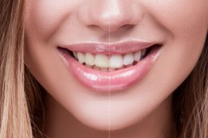 Laser Teeth Whitening OKC