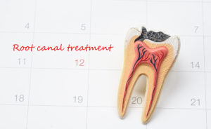 When is a root canal necessary?