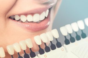 Versatility of porcelain veneers